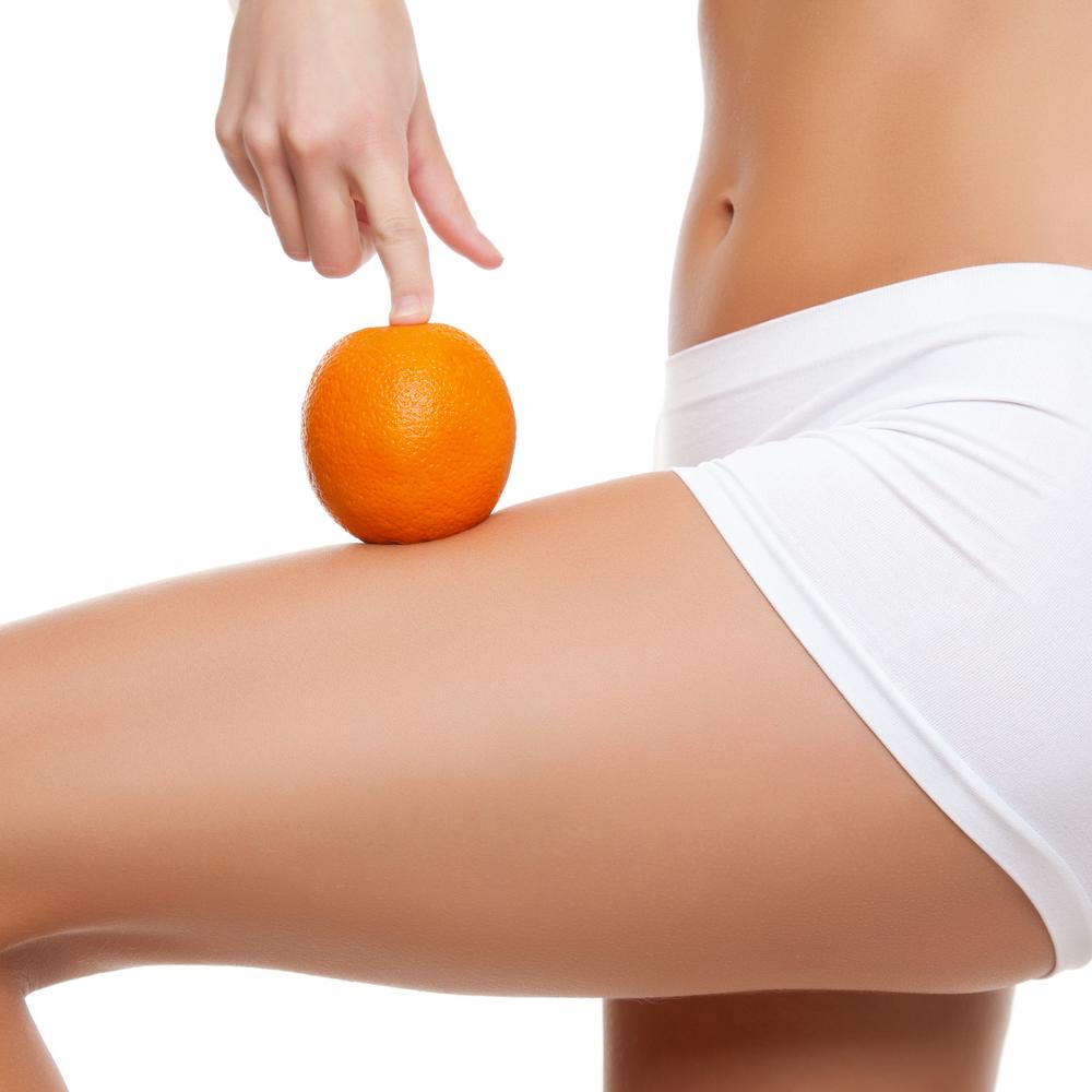 Crema Forte Corpo Cellulite & Smagliature